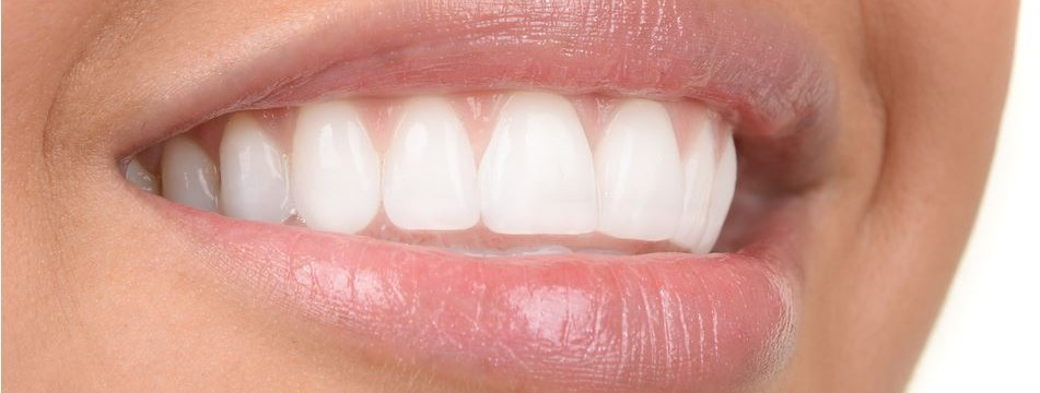 Implantologia dentale prezzi 5.900 euro per arcata