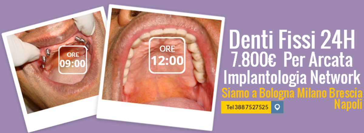 Implantologia dentale prezzi 7.800 euro